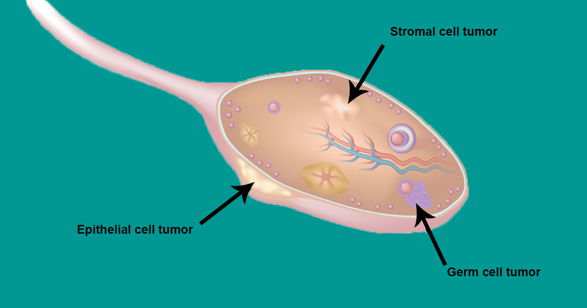 Important facts every woman needs to know about ovarian cancer